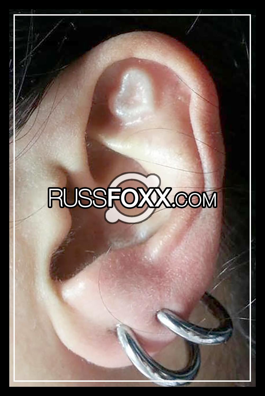 subdermal implants  u2013 russ foxx